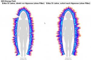 Kirlian Fotografie vor und nach Hypnose